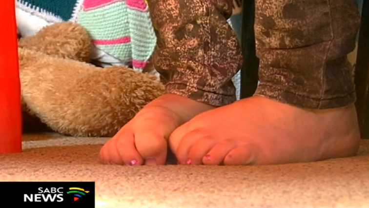 Abuse victim's feet.