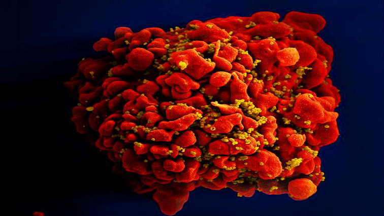 HIV-positive man functionally cured, UNAIDS encouraged