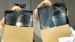 TB x-ray