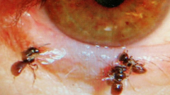 bees-found-in-womans-eye.