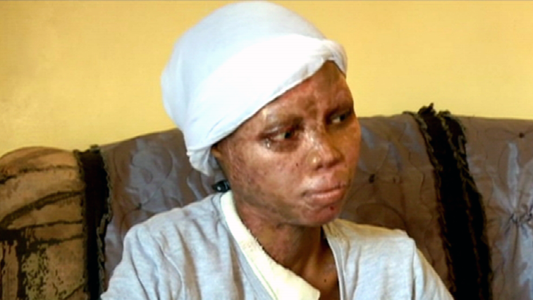 SABC News ACID BURN VICTIM - Acid attack victim seeks justice – Warning, story contains graphic visuals