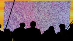 Cancer cells are seen on a large screen connected to a microscope