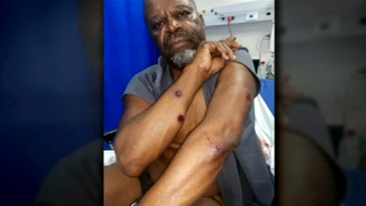 SABC News Patrick Shai Screen Grab - Actor Patrick Shai shot multiple times with rubber bullets during protest
