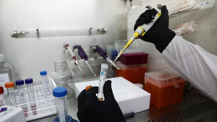 SABC News Israel COVID 19 saliva Reuters - Israeli hospital trials super-quick saliva test for COVID-19