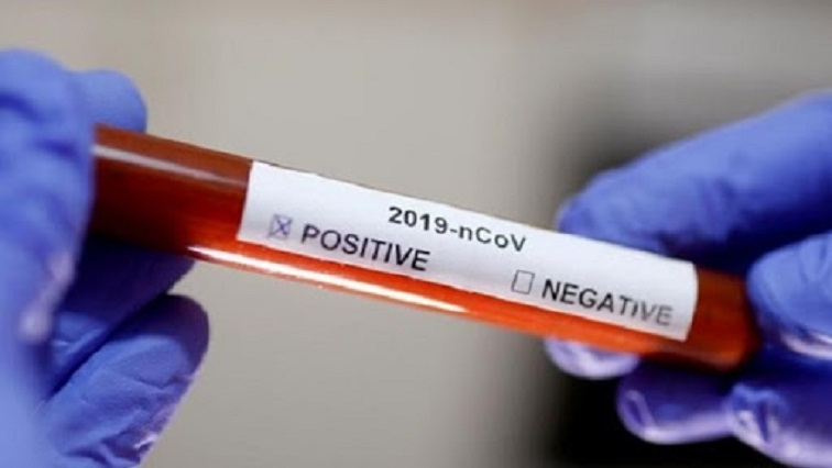 SABC News COVID 19 1 - 'Stigmatisation of infected or recovered COVID-19 patients is dehumanising'