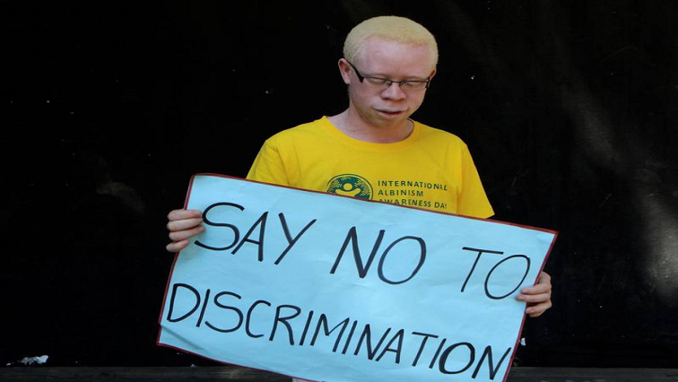 SABC News Albinism R - People must unlearn dangerous myths about albinism: Mthethwa