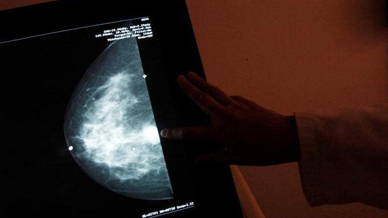 SABC News Breast cancer reuters - 50% drop in number of women screening for breast cancer