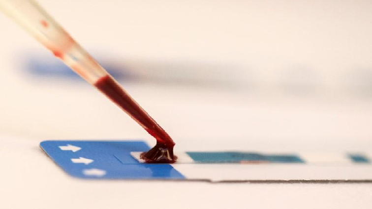 SABC News HIV Testing Reuters - COVID-19 pushed back developments in finding vaccine against HIV/Aids: Karim