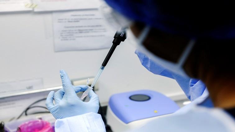 SABC News COVID 19 Lab Reuters - SA records 1 476 135 COVID-19 cases , 46 290 deaths