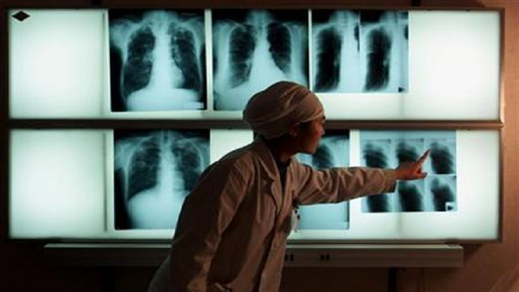 SABC News TB R - Mkhize encourages South Africans to use TB Health Check App for screening